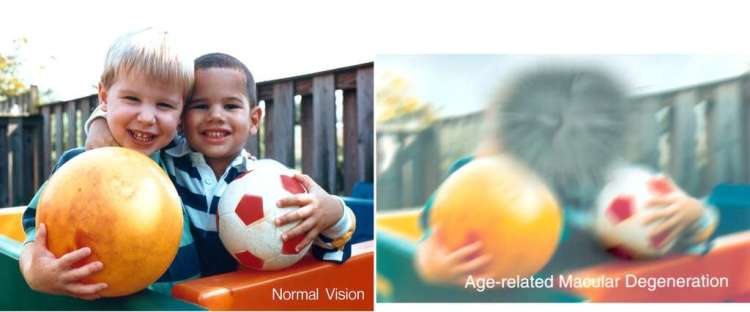 fbf697a2b5_27902_36828-comparaison-vision-normale-dmla-national-eye-institute-dp